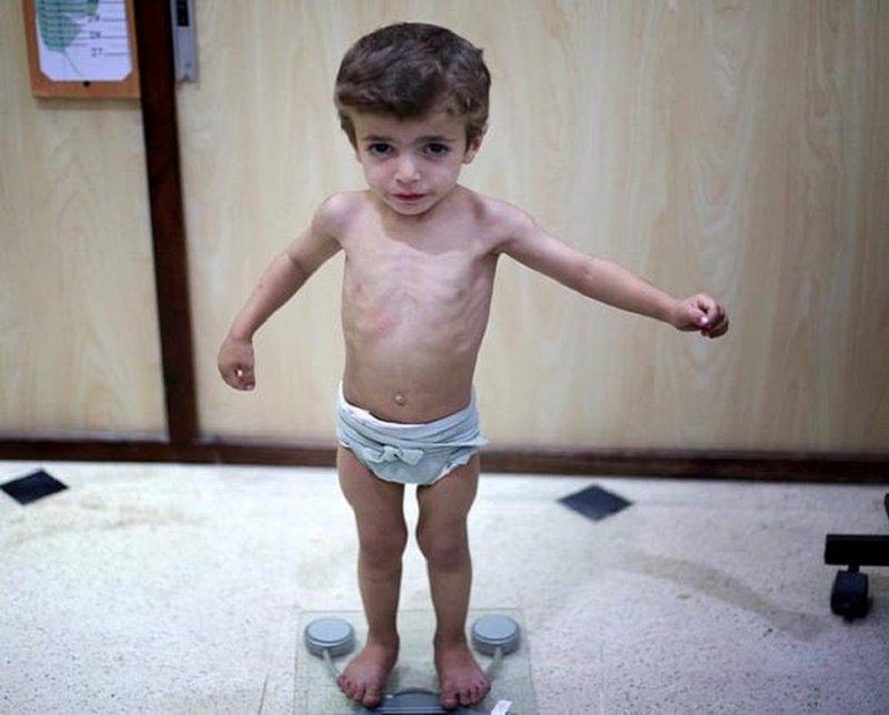 bé 2 tuổi biếng ăn suy dinh dưỡng