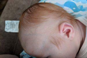 Rụng tóc ở trẻ sơ sinh – 3+ Vấn đề mẹ nên biết