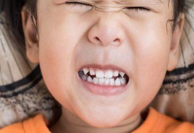 Mách mẹ 5+ bí quyết giúp trẻ giảm nghiến răng khi ngủ