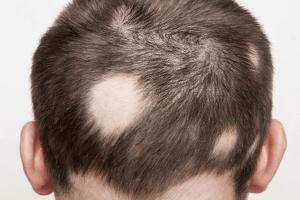 5+ Nguyên nhân gây rụng tóc ở trẻ từ 3 đến 10 tuổi