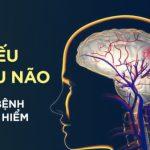 Thiếu Máu Não: Dấu hiệu, Nguyên nhân và Cách điều trị