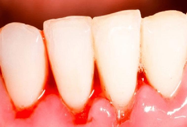 Chảy máu chân răng là một biểu hiện thiếu Vitamin C