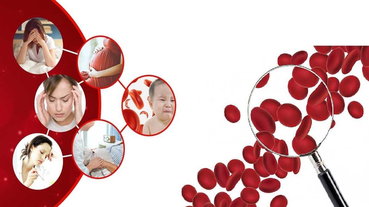 Thiếu máu thiếu sắt là tình trạng thiếu máu xảy ra do cơ thể không cung cấp đủ sắt cho nhu cầu tạo hồng cầu.